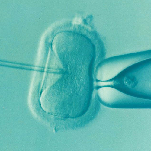 What actually happens to a woman during IVF?